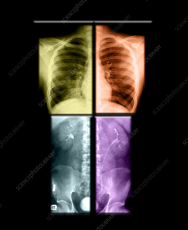 Composite X-rays of Kidneys and Pneumonia