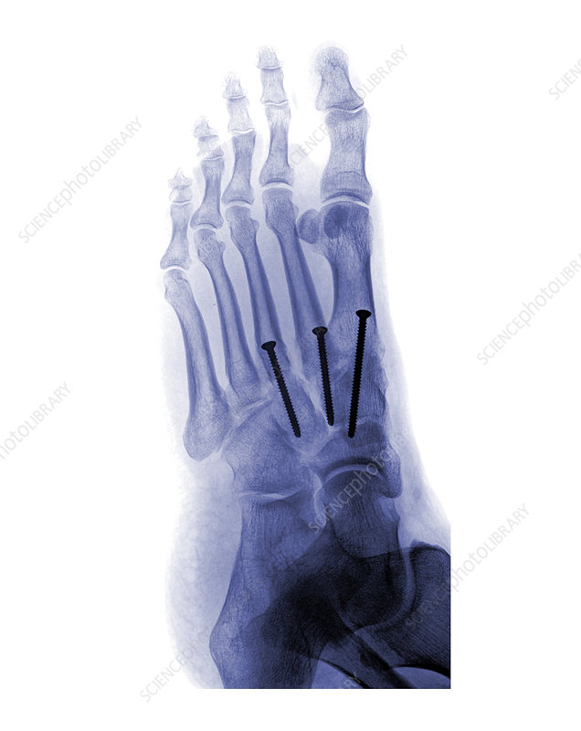 'Lisfrance Injury, X-Ray'