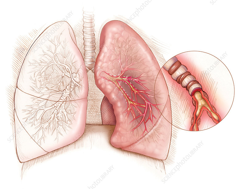 Illustrating Asthma