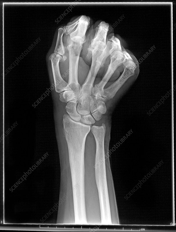 'Wrist, X-Ray (Scaphoid View)'