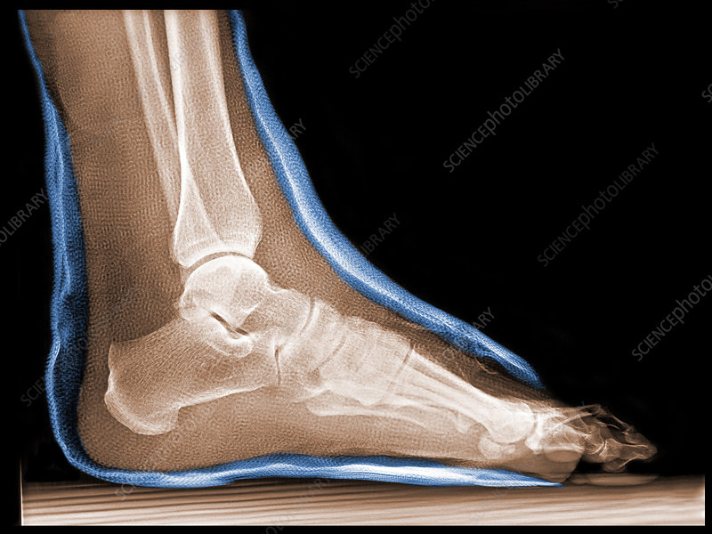'Broken Ankle in Cast, X-Ray'