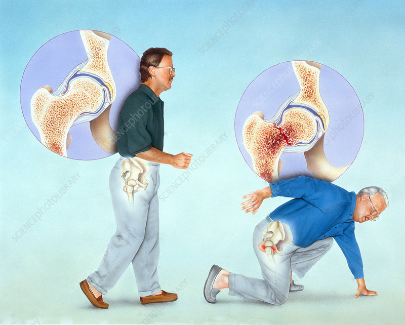 Osteoporosis and Hip Fracture