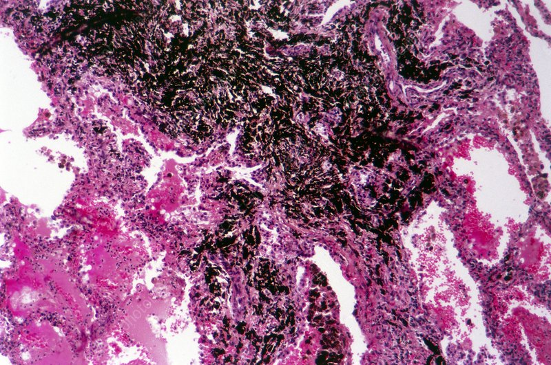 Fibrosis of the lung, light micrograph