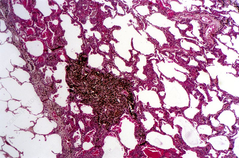 Lung cancer, light micrograph