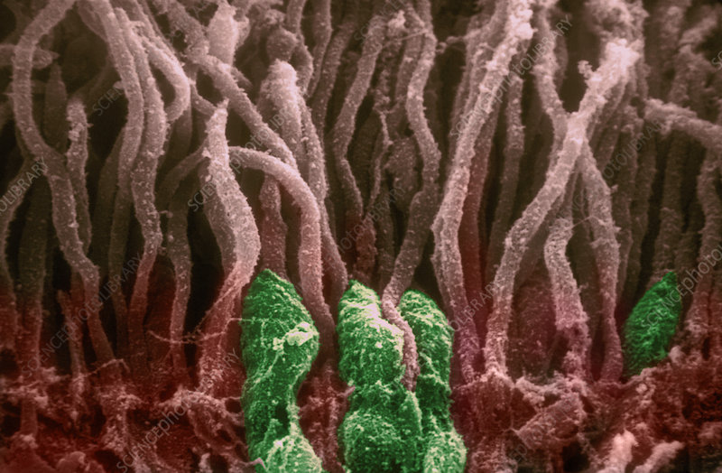 SEM of Rods and Cones in Retina