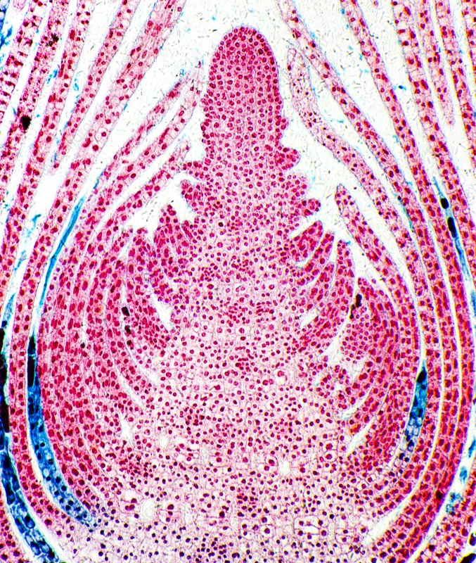 Huckleberry shoot, light micrograph