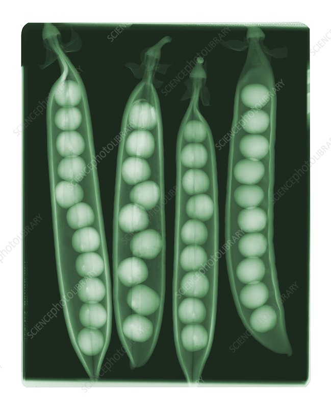 Peas in pods, coloured X-ray