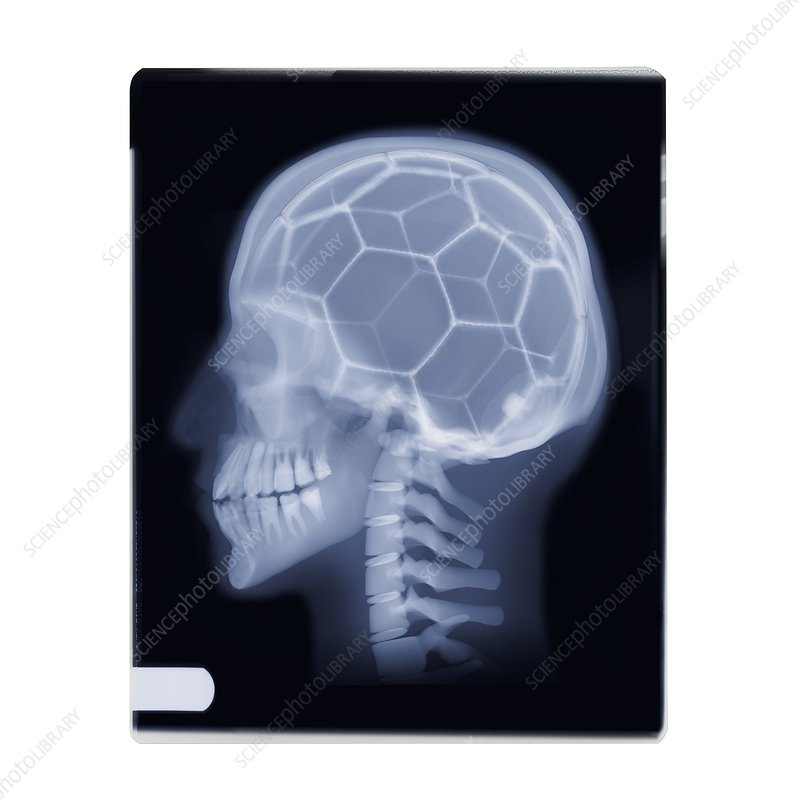 Football on the brain, X-ray image