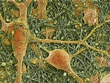 Nerve cells and glial cells, SEM