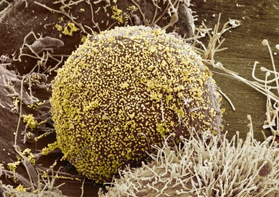 Cell infected with HIV, SEM