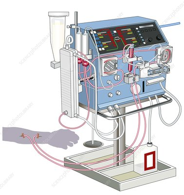 Kidney dialysis machine, artwork