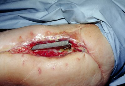 Wound breakdown after hip replacement