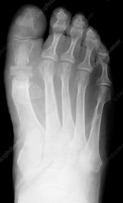 Big toe joint replacement, X-ray