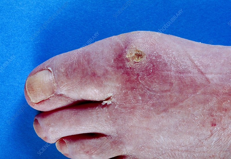 Scleroderma of the foot