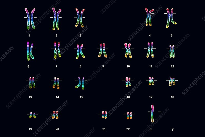 Turner's syndrome karyotype, female