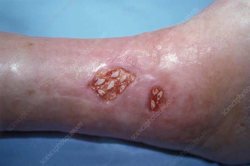 Skin grafts on ulcerated ankle