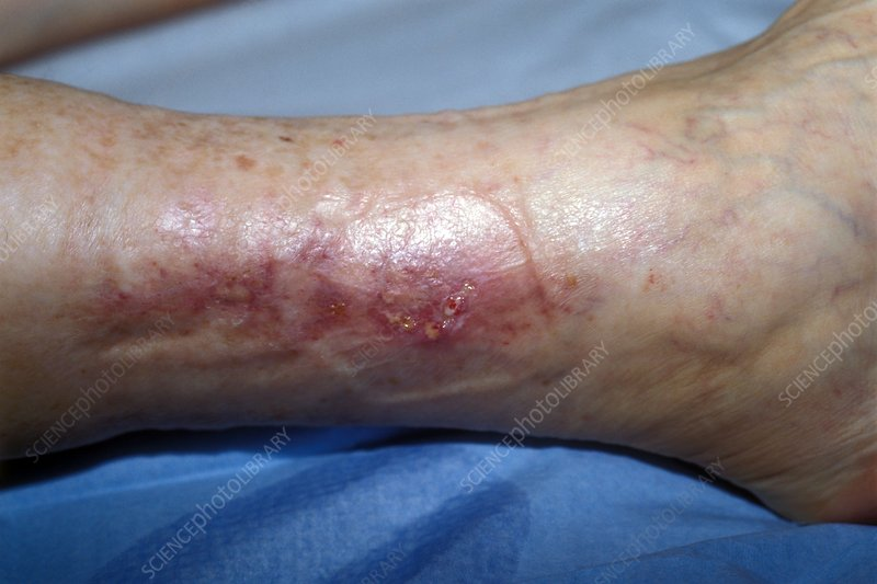 Healed ulcerated ankle