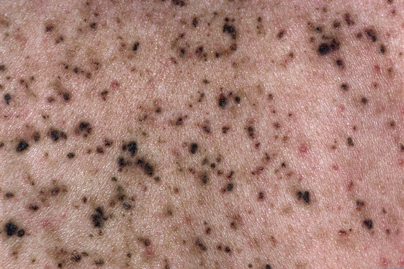 Skin in Darier's disease