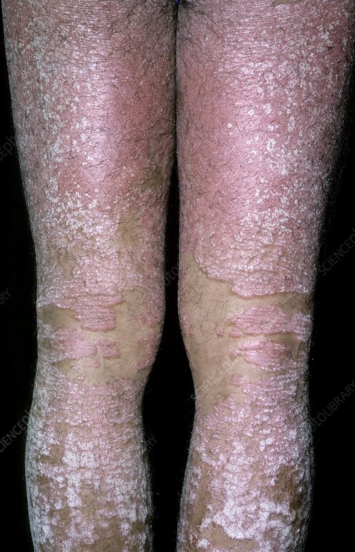 Erythrodermic psoriasis on the legs
