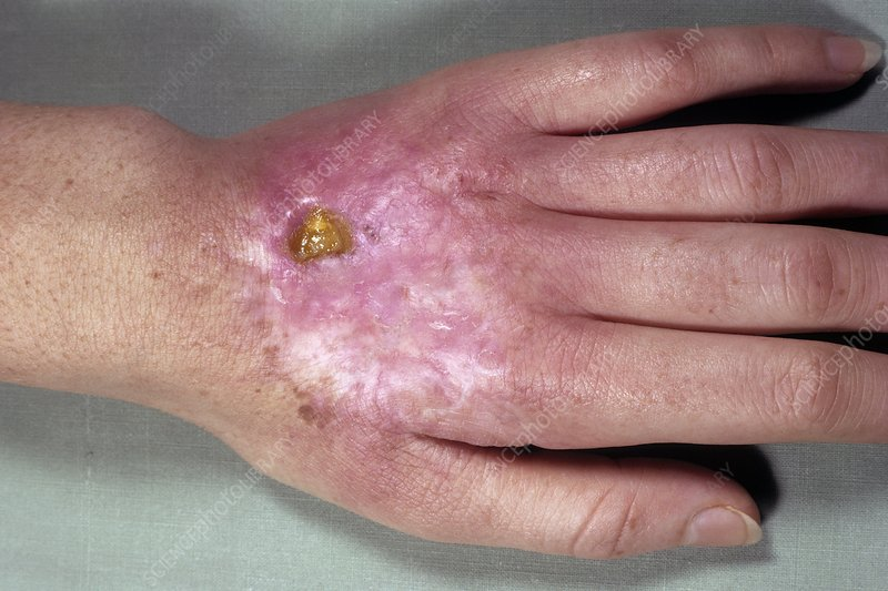 Radiodermatitis on the hand