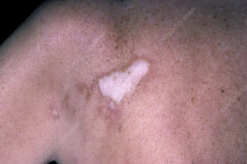 Morphea scleroderma on the shoulder