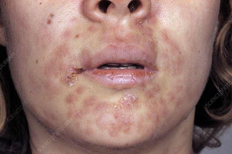 Secondary syphilis on the face