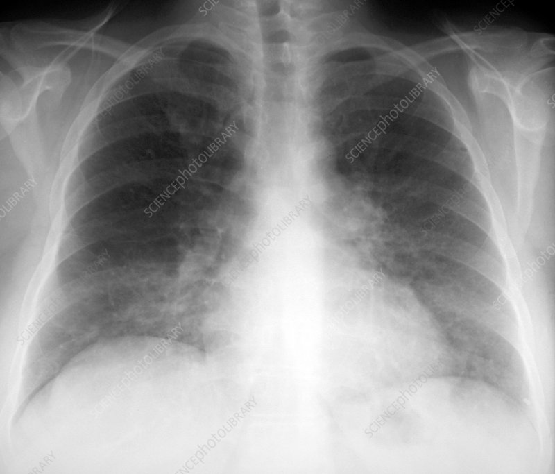 Interstitial pneumonia of lungs, X-ray