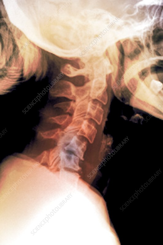 Neck sprain of spine, X-ray