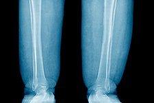 علت ،علائم و درمان لنف ادم یا ورم لنفاوی