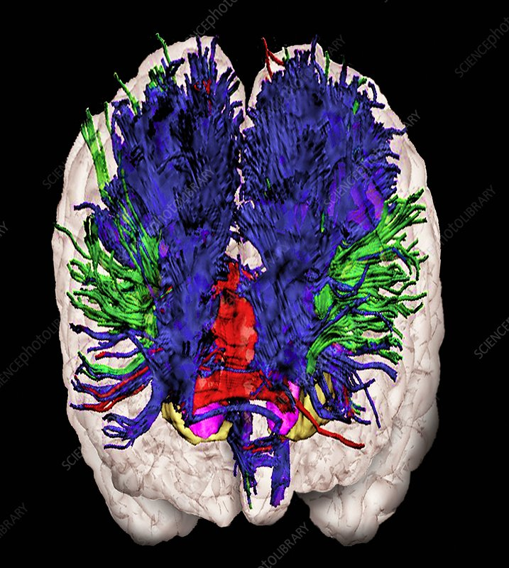 Nerve fibres of the brain, DTI scan