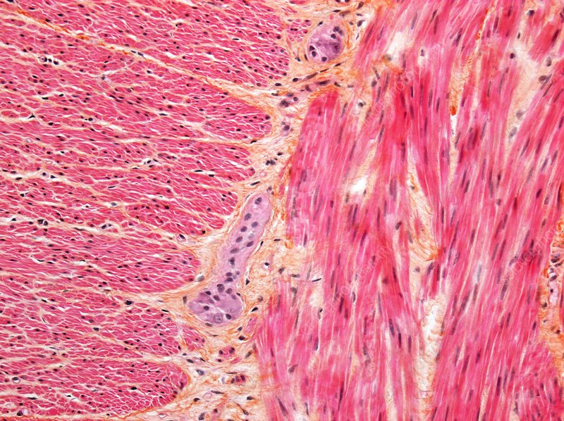 Healthy large intestine, Light micrograph