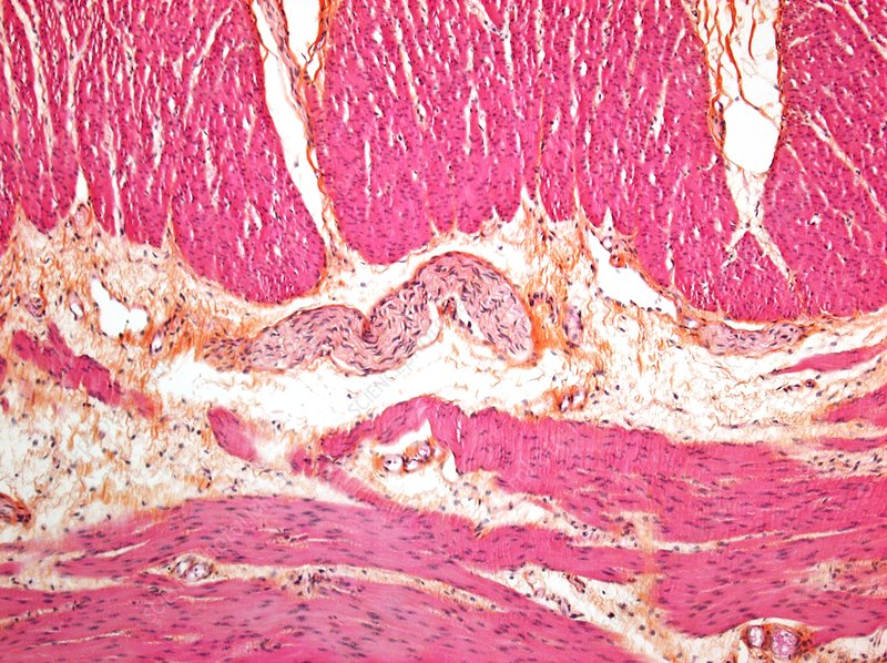 Hirschsprung's disease, Light micrograph