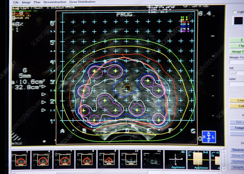 Prostate cancer radiotherapy planning - Stock Image C003