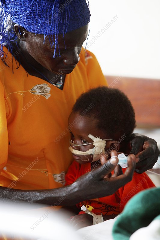 Child patient and mother, Uganda