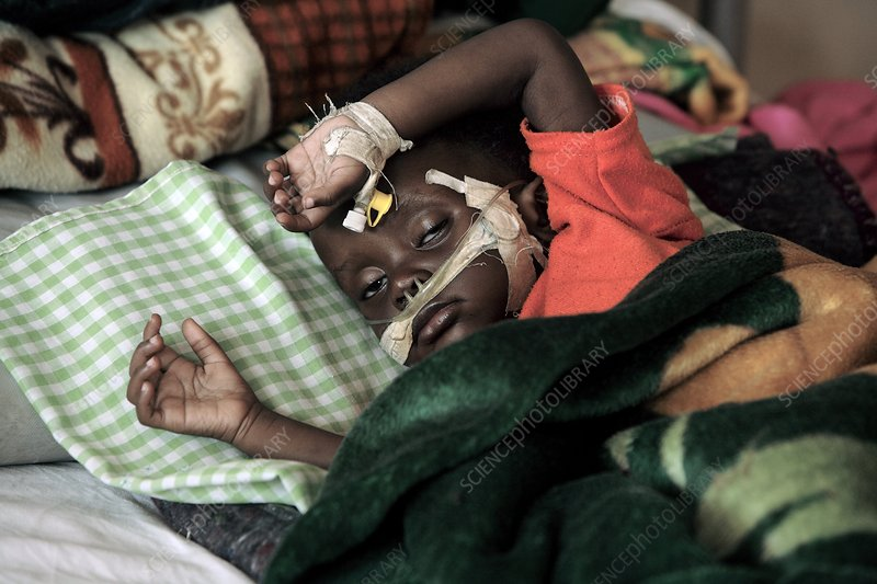 Child patient, Uganda