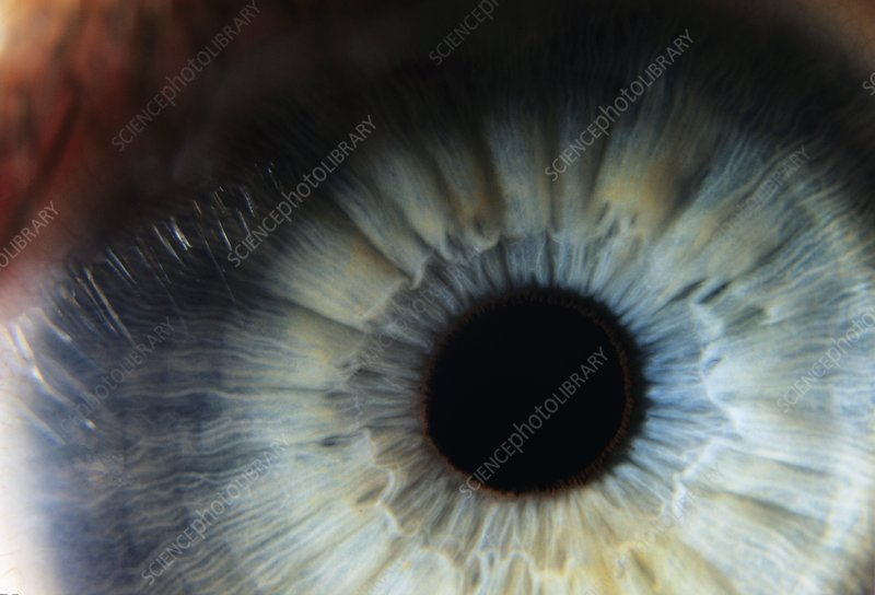 Human eye for cornea harvesting