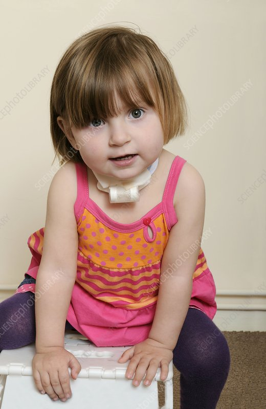 Young girl with tracheostomy