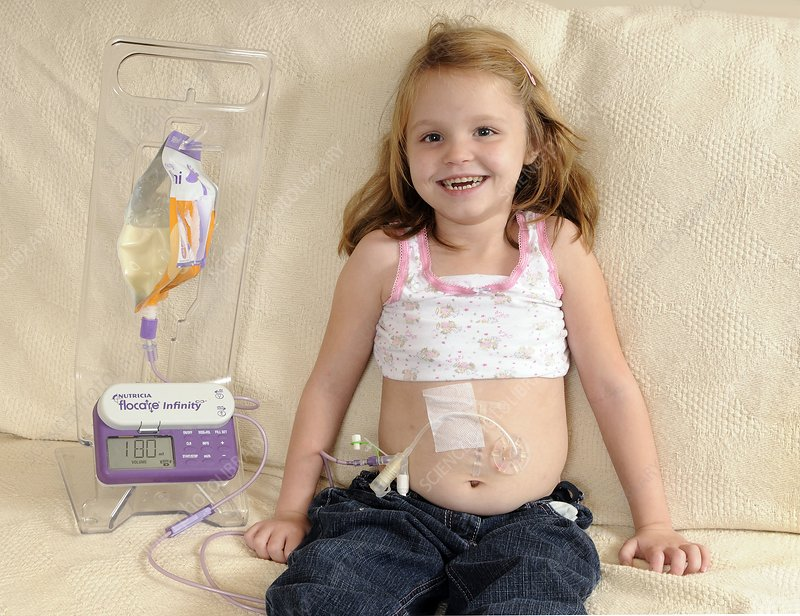 Five year old girl fed by gastric tube