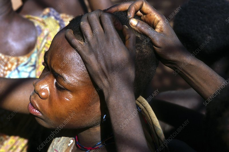 Head lice removal, Africa