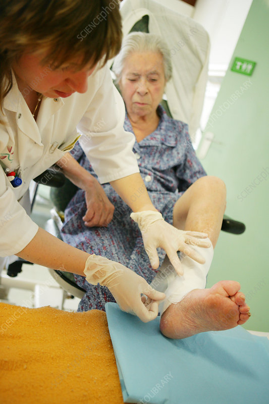 ace bandage (ankle) while running: Injuries: Runner's World Forums