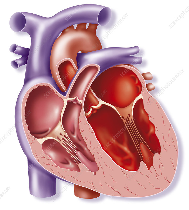 Cardiomegaly, illustration