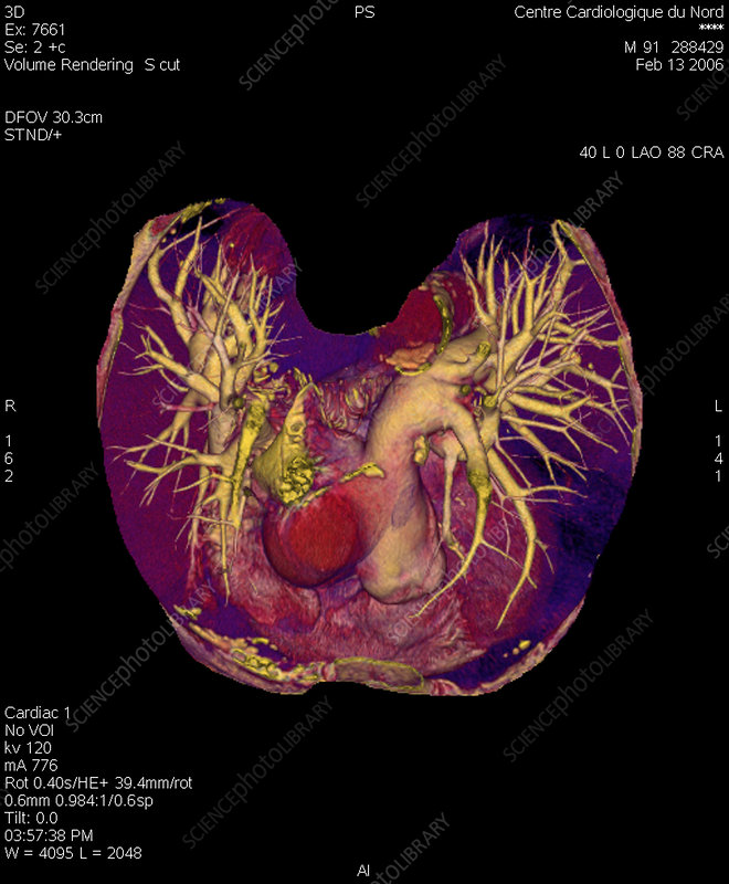 Pulmonary artery, 3d scan