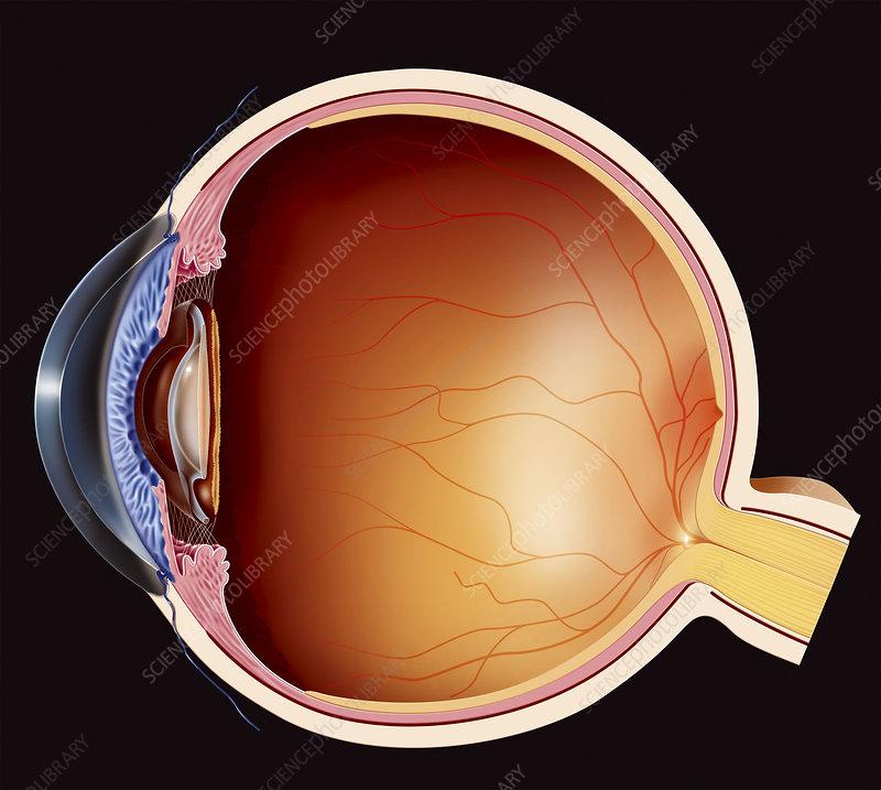 Cataract, drawing