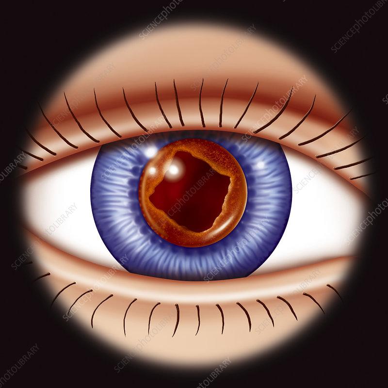 Cataract surgery, drawing