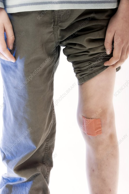 Plaster on a boy's knee