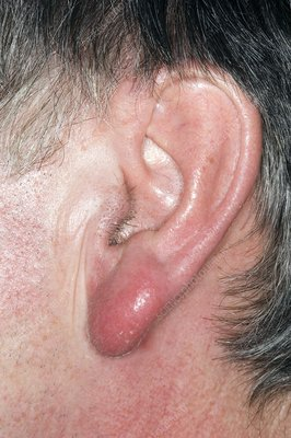 Cellulitis on the earlobe