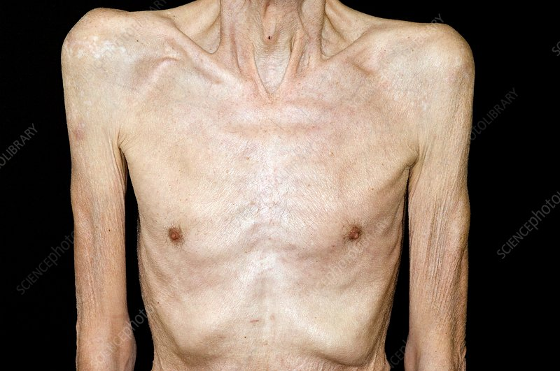 Weight loss in COPD