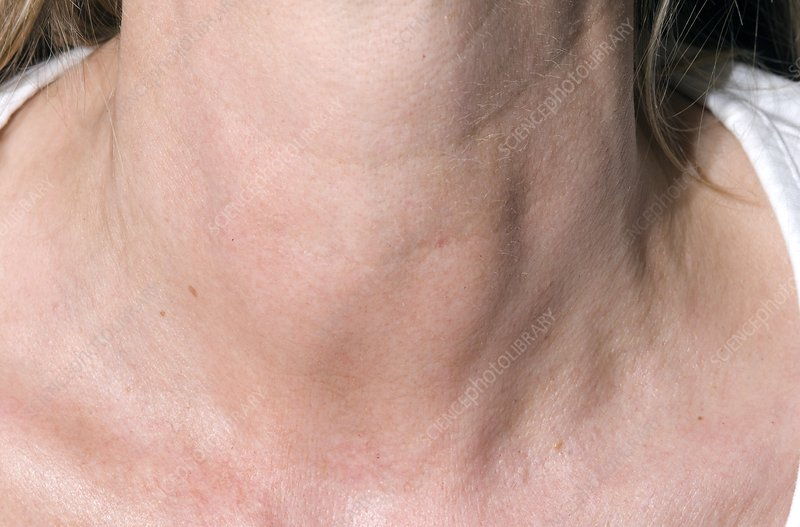 Thyroiditis (swollen thyroids) in neck - Stock Image C004 ...