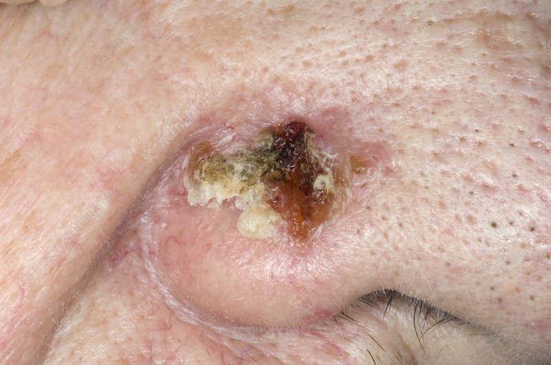 Ulcer Skin Cancer On Nose