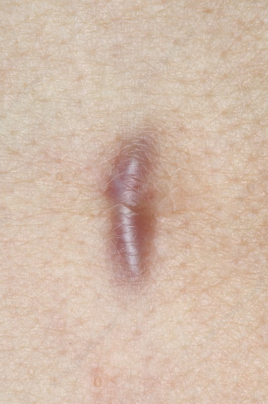 Keloid scar on the abdomen